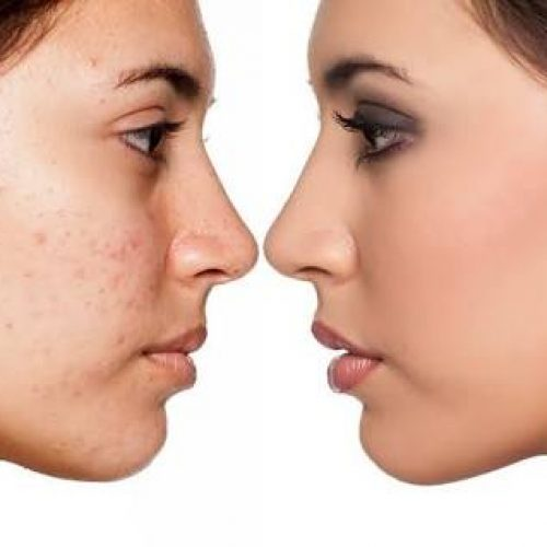 Various ways to Get Rid of Stubborn Pimples and Acne