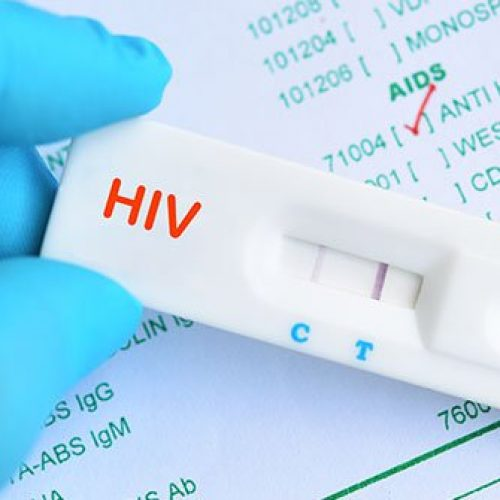 Coronavirus Lockdowns Could Spark Rise in HIV Infections, Experts Warn